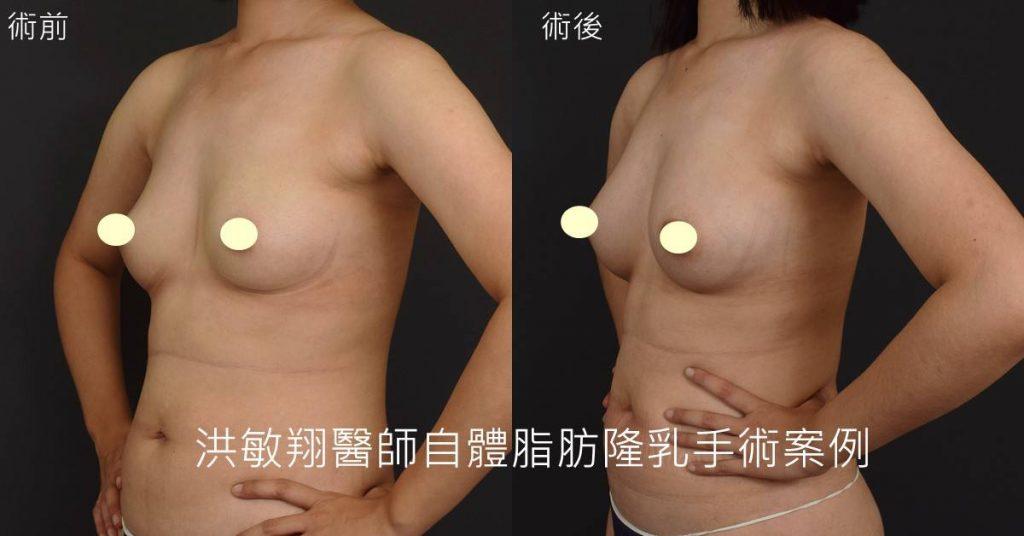 洪敏翔整形外科醫師-抽脂案例