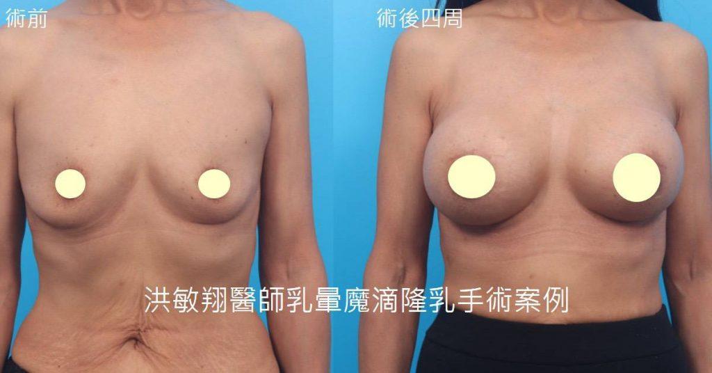 洪敏翔整形外科醫師-魔滴隆乳案例