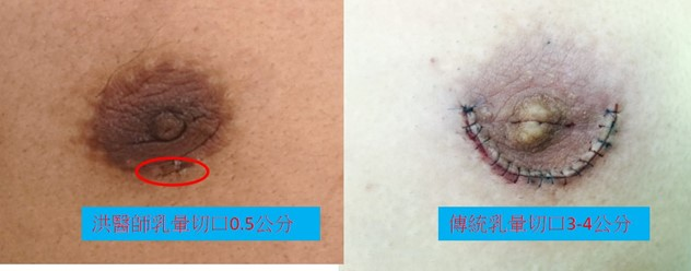 洪醫師乳腺切除傷口僅需0.5-1.0公分