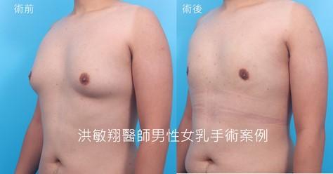 洪醫師超微創複合女乳手術胸前無疤且乳暈疤痕更小更不明顯。