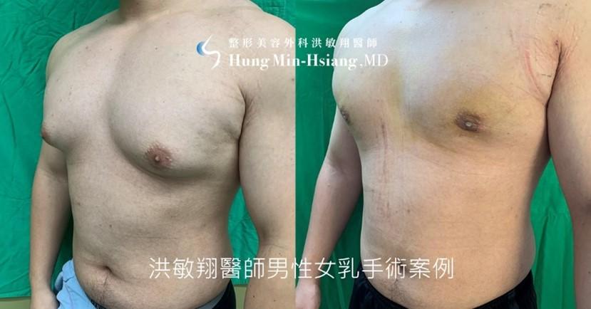 洪醫師採用超微創複合式男性女乳手術,透過僅約1公分左右傷口,徹底改善女乳問題。