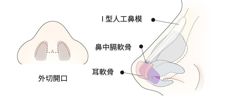 型鼻模+外切開口