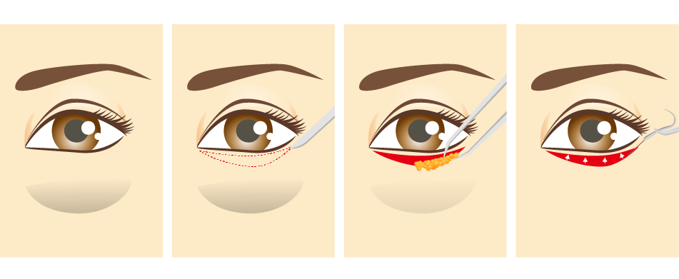 眼袋外開術