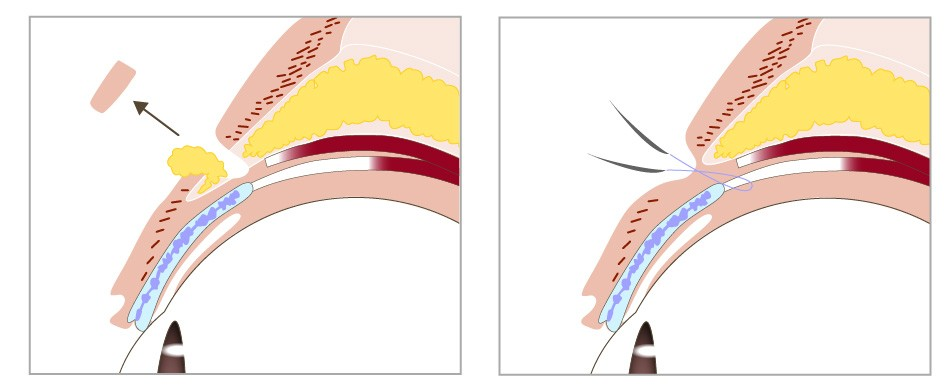 割雙眼皮手術