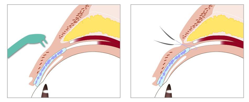 訂書針雙眼皮手術