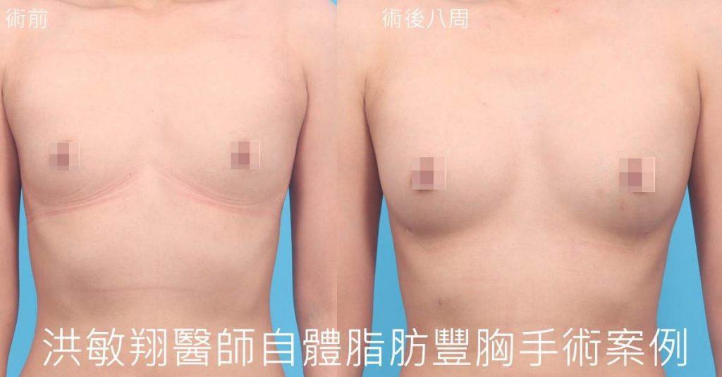 洪敏翔整形外科醫師-自體脂肪移植案例