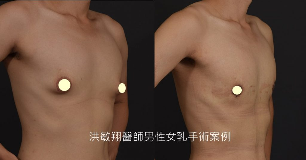 洪敏翔整形外科醫師-男性女乳症案例