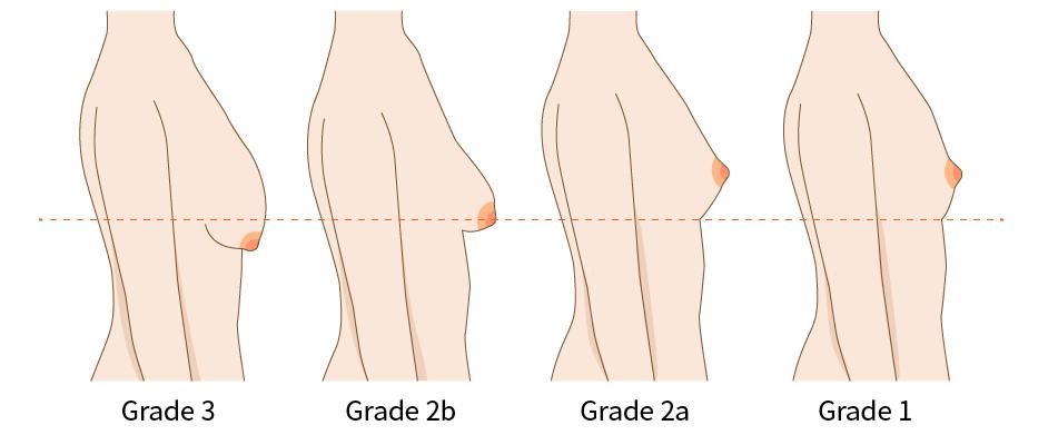 賽門氏分級法 (Simon classification)