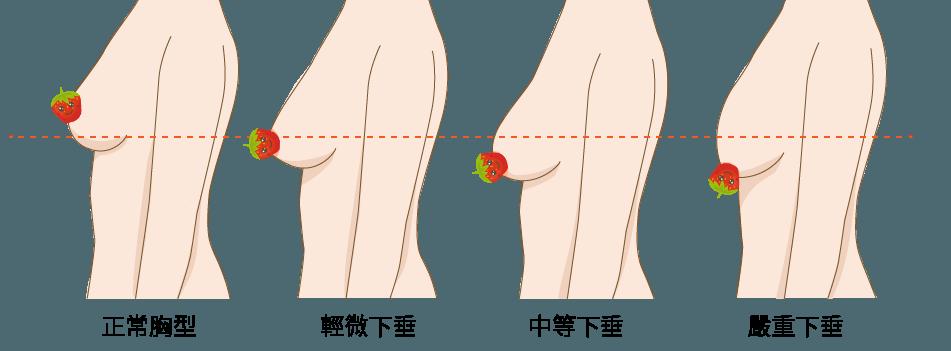 條件一:乳房下垂程度