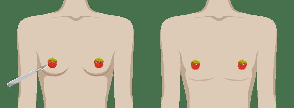 乳暈微創平胸手術