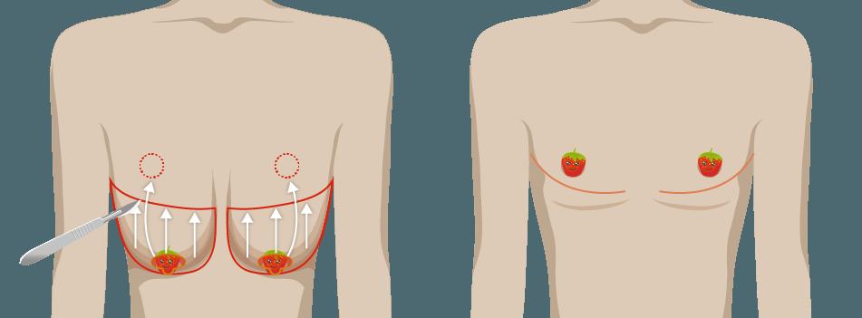 一字型平胸手術