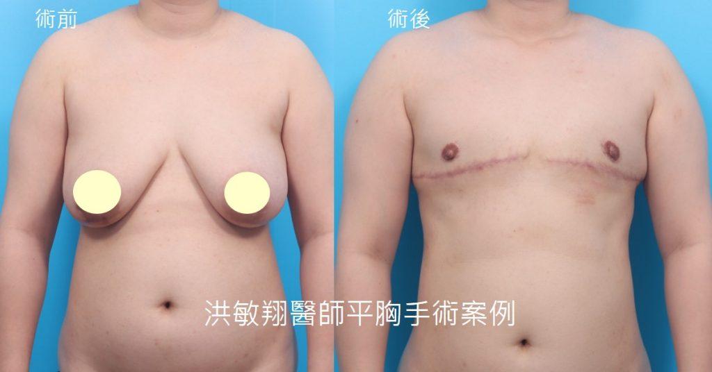 洪敏翔整形外科醫師-平胸手術案例